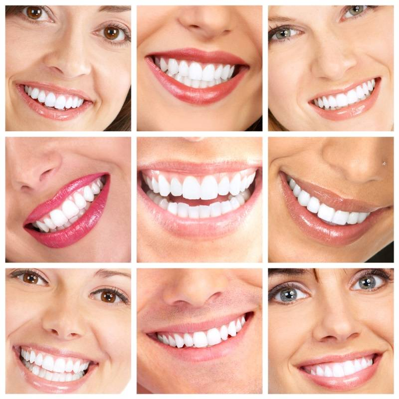 15 лучших способов отбеливания зубов в домашних условиях