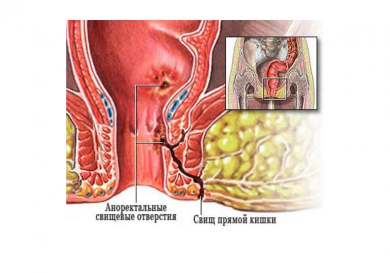Кариес у десны или пришеечный: почему появляется и как лечат