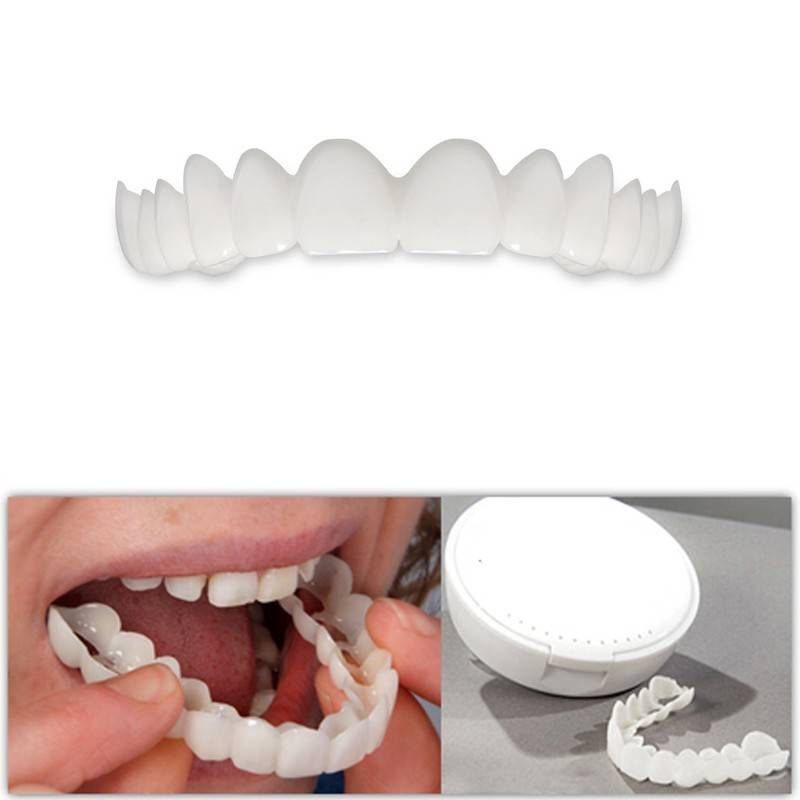Эстетическая реставрация жевательных зубов при помощи керамических накладок онлей, инлей, оверлей