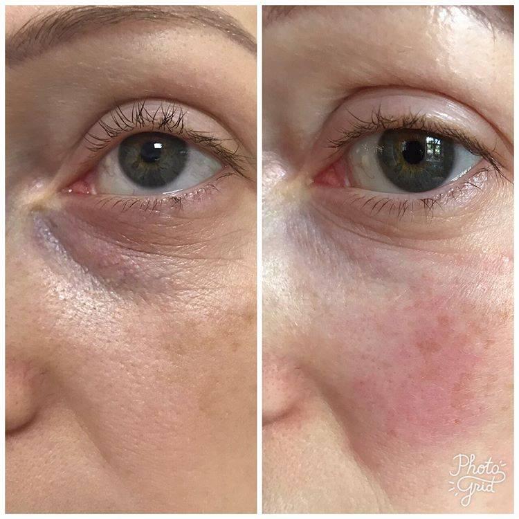 Уникальная омолаживающая процедура — мезотерапия вокруг глаз: виды, фото до и после, средние цены