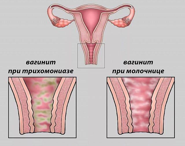 Атрофический кольпит у женщин: симптомы, лечение медикаментами и народными средствами