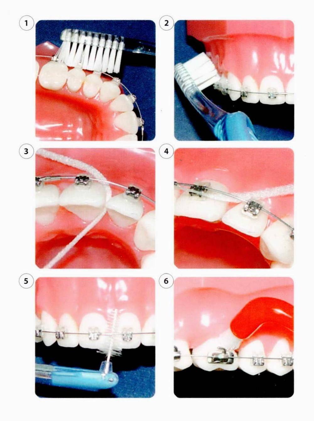 Как снимают брекеты с зубов: описание процедуры. сколько носить брекеты и что делать после снятия