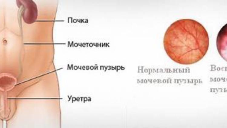 Чем лечить цистит и уретрит у женщин