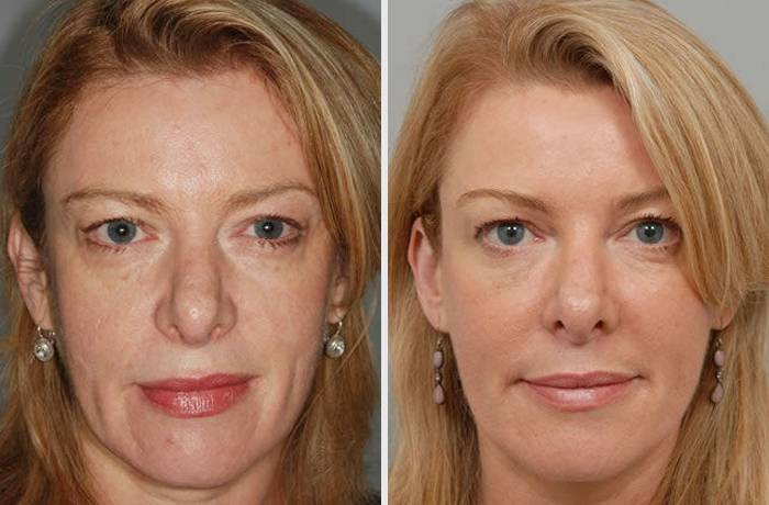 Восстановление и омоложение кожи лица с помощью плазмолифтинга, отзывы, фото до и после сеансов