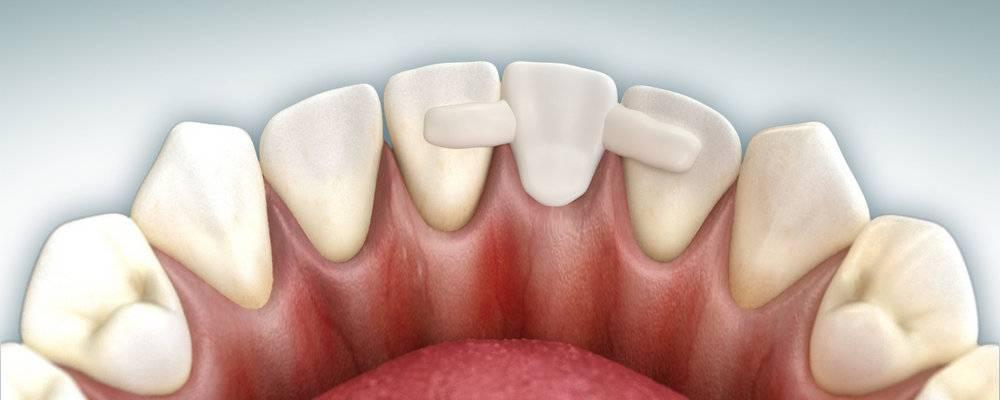 Что делать если начал шататься зуб