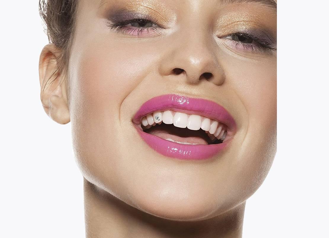 Что такое скайсы на зубы, зачем они нужны и как устанавливаются?