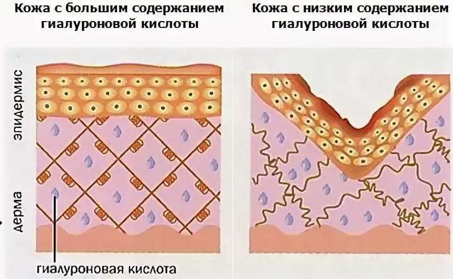 Какое действие гиалуроновой кислоты оказывает на кожу лица?