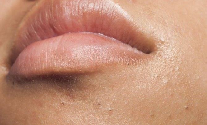 Как убрать черные точки над верхней губой в домашних условиях