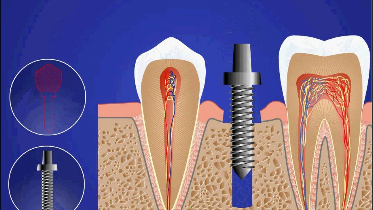 Из чего делают импланты и как их ставят? сколько по времени занимает имплантация зубов?