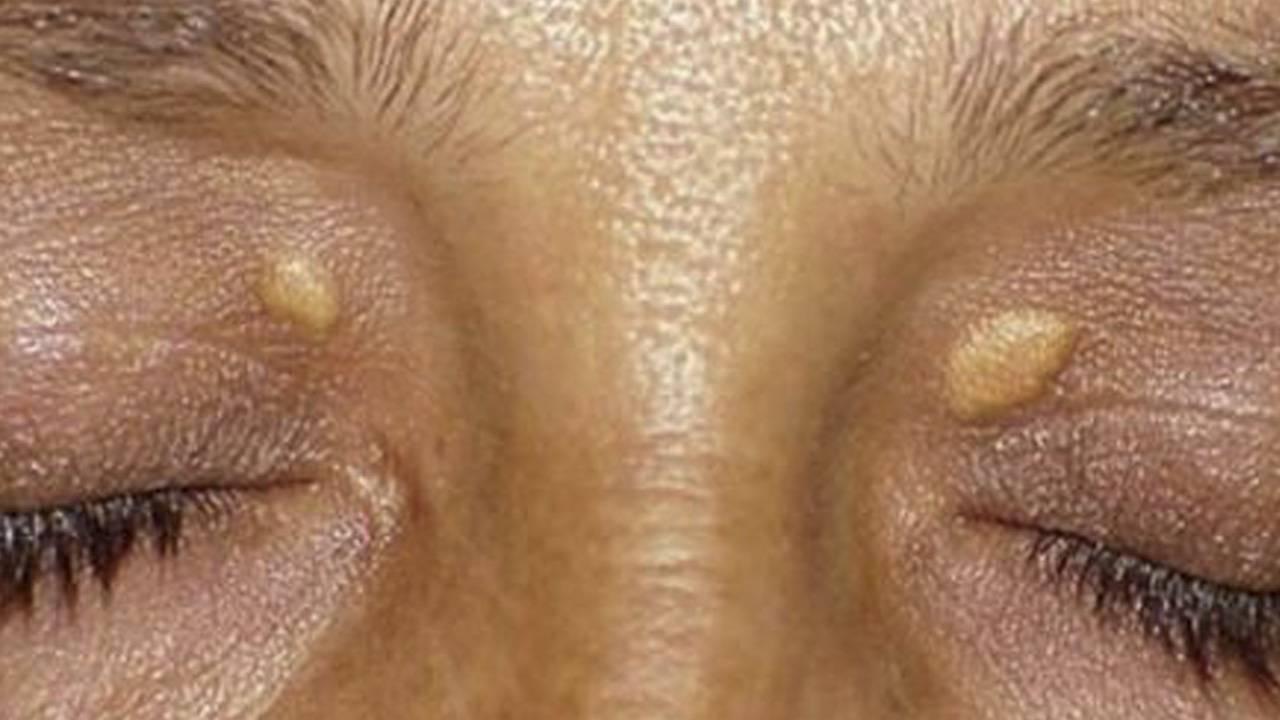 Виды бородавок на лице, причины их появления и лечение