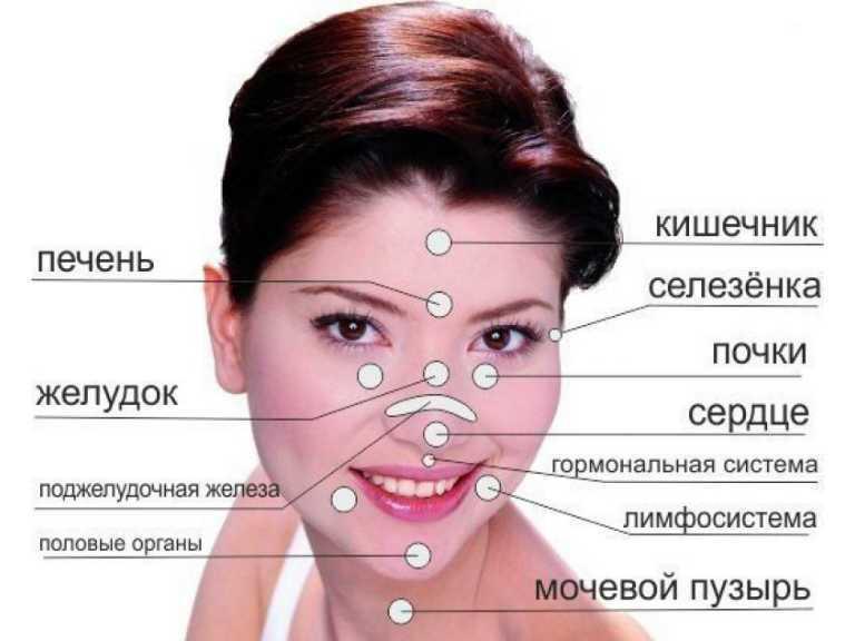 Прыщи у женщин на шее: причины появления, профилактика и лечение