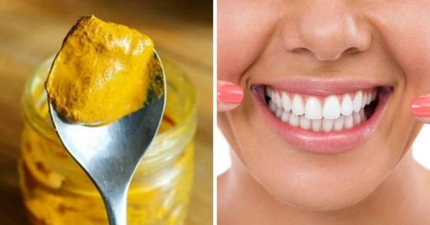Эффективное отбеливание зубов в домашних условиях: самый лучший способ очищения эмали без помощи стоматолога