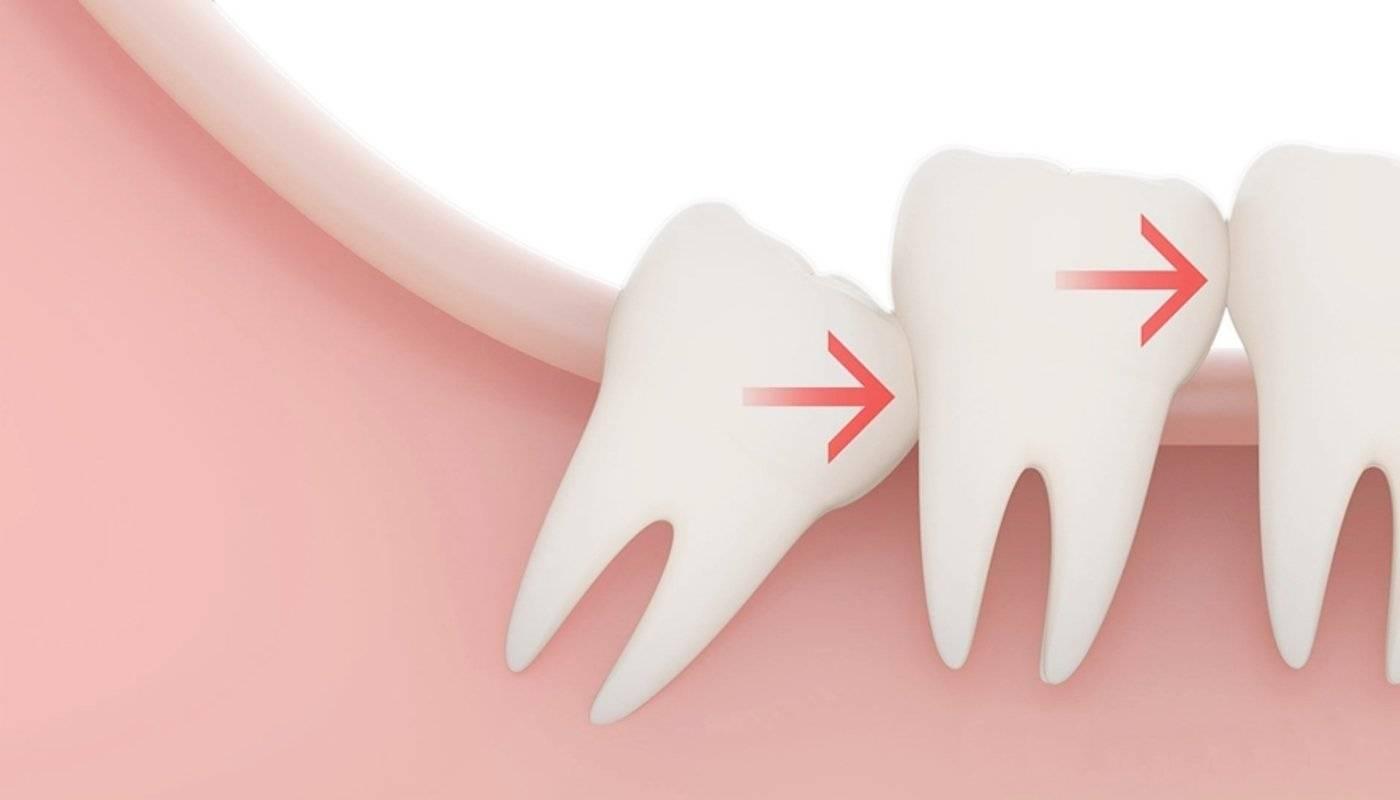 Онемение после удаления зуба мудрости или лечения зуба: причины, симптомы и что делать