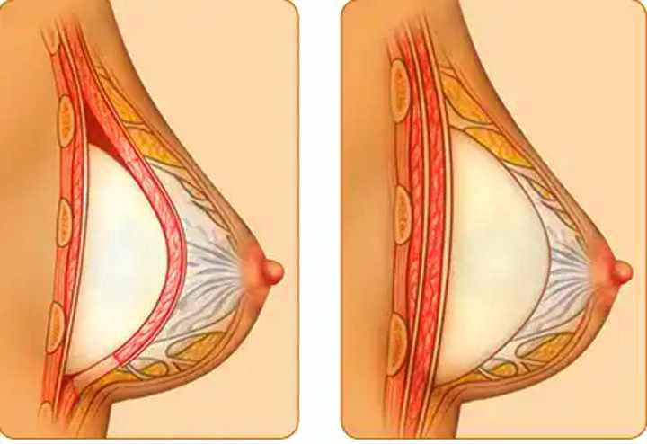 Когда делают подтяжку груди, каких видов она бывает и как проходит процедура?