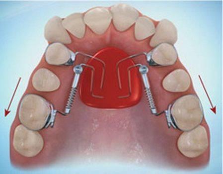 Разница между ортодонтом и ортопедом. дантист, ортопед, ортодонт, зубной врач и врач стоматолог: в чем разница? интересные подробности о профессиях