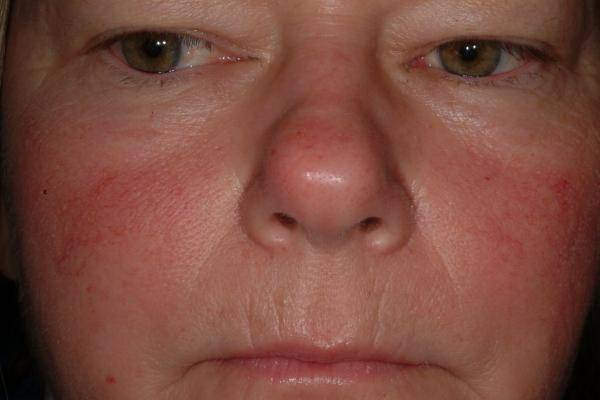 Красное пятно на носу у переносицы. красное пятно на носу