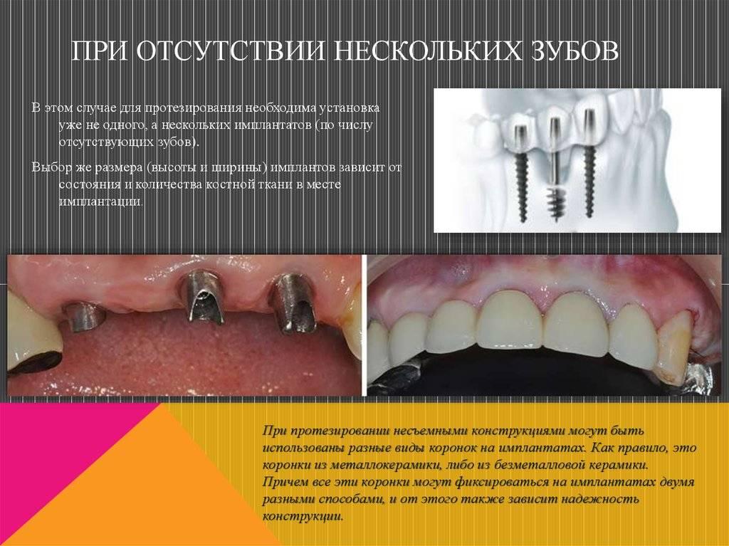 Детское протезирование зубов — разновидности протезов, показания к установке, причины раннего их выпадения