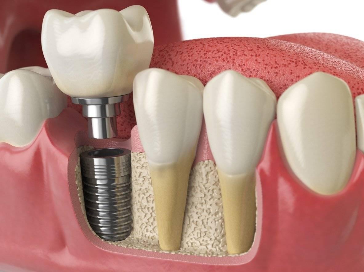 Сколько держатся импланты зубов