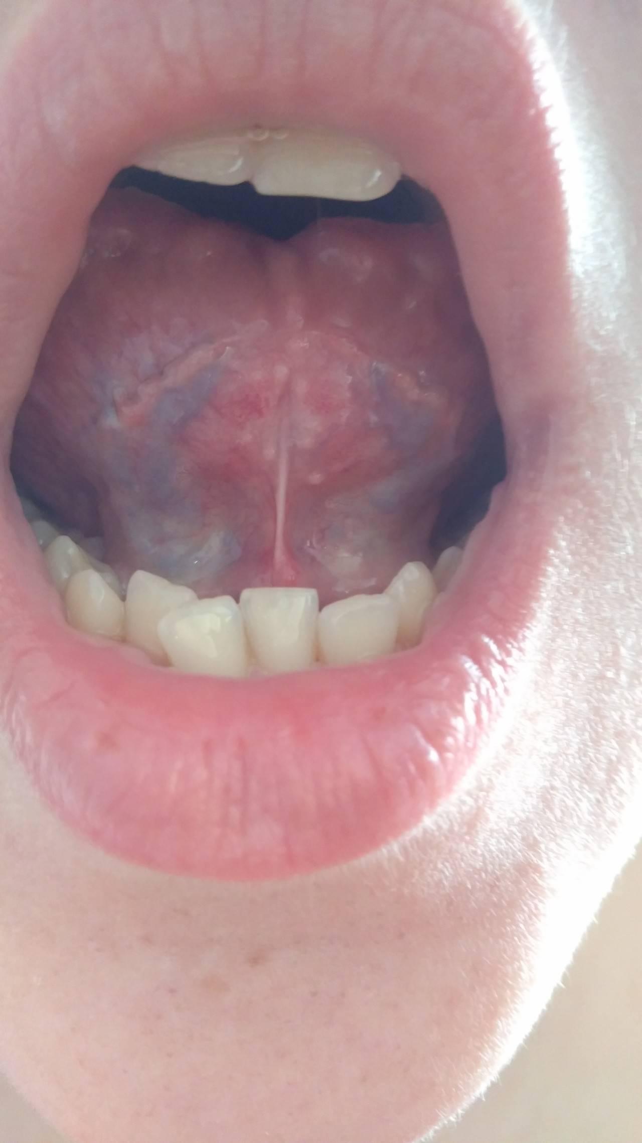 Вирус папилломы человека на языке симптомы —