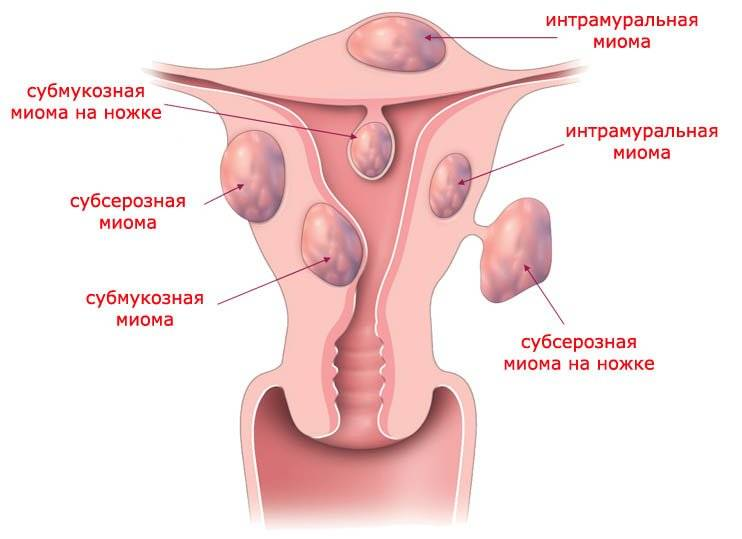 Опасна ли фиброма матки? когда нужна операция, и какие альтернативные методы лечения существуют?