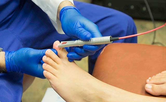 Лечение вросшего ногтя лазером как наиболее эффективный и безопасный метод