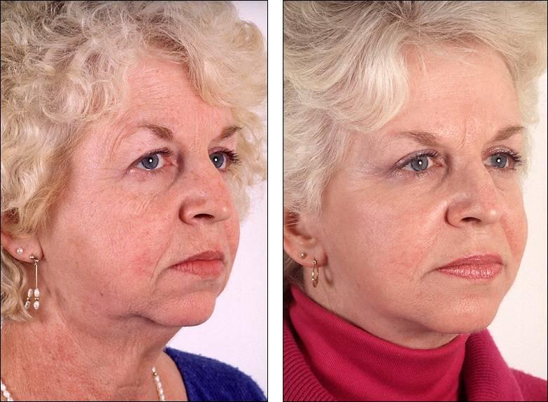 Использование пиявок в косметологии: какой эффект, секреты использования + фото и полезное видео