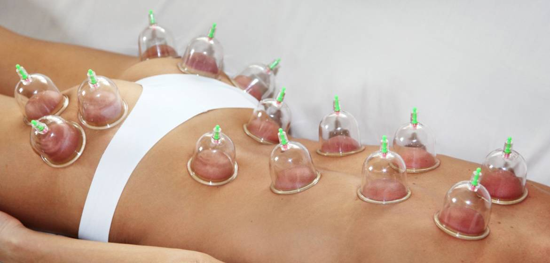 Как делать баночный массаж живота
