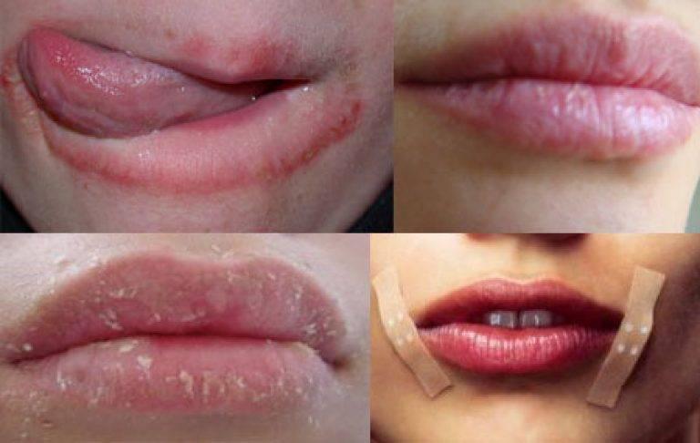 Что делать, если у ребенка трескаются губы