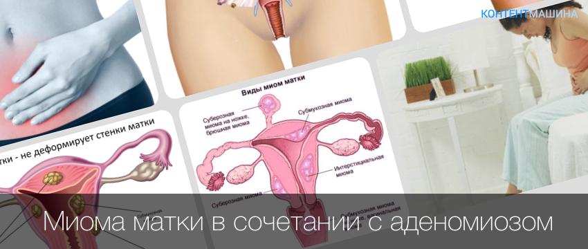 Как лечить аденомиоз матки народными средствами