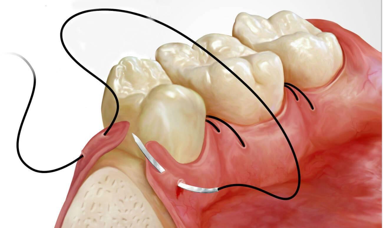 Если не снять швы после удаления зуба