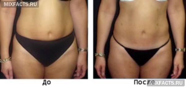 Эффективные жиросжигающие уколы в живот для похудения в домашних условиях