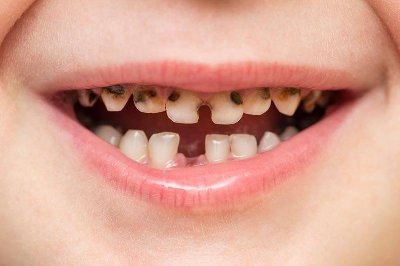Почему крошатся зубы
