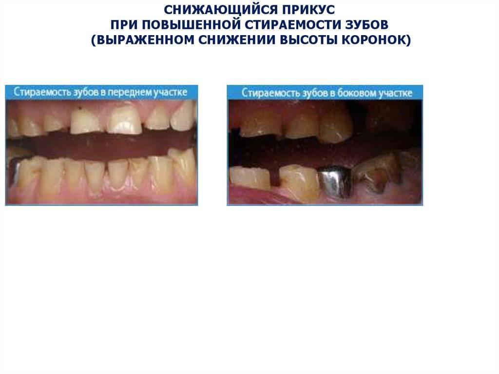 Лечение и профилактика патологической стираемости зубов: что делать, если сточились передние единицы?