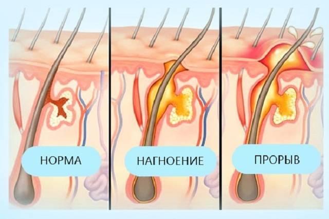 Обзор препаратов для лечения фурункулов