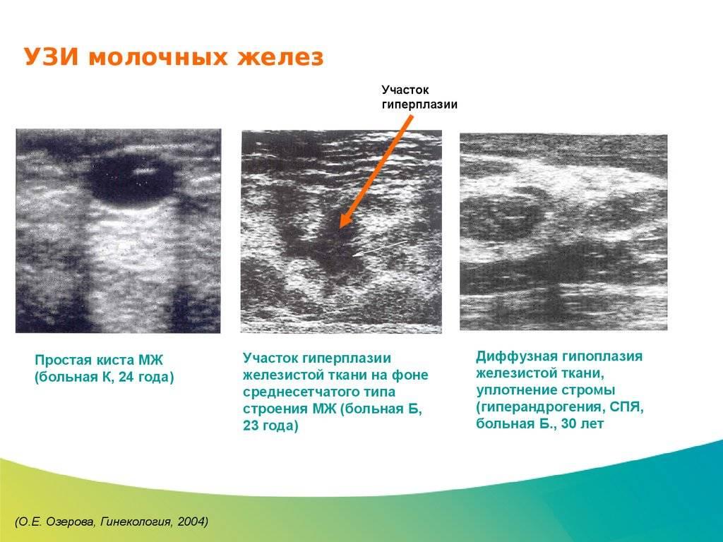 Листовидная фиброаденома молочной железы