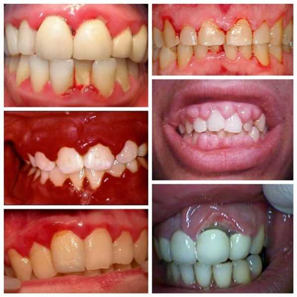 Когда нужны рекомендации специалистов: болит зуб под мостом, что делать?