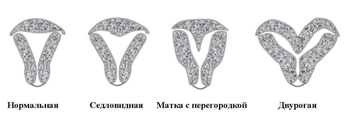 Может ли двурогая матка стать нормальной. описание двурогой матки с фото: что это такое, можно ли родить, имея эту патологию? двурогость матки и беременность: основные риски