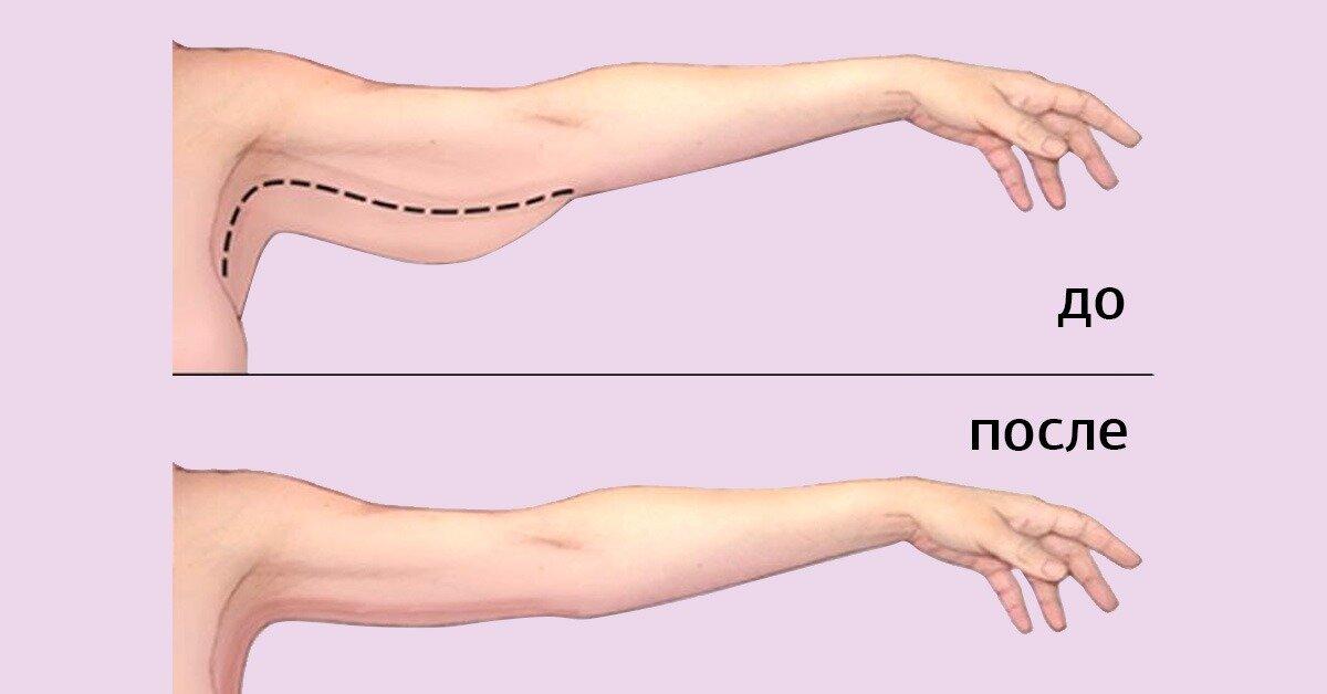 Как подтянуть обвисшую кожу на руках