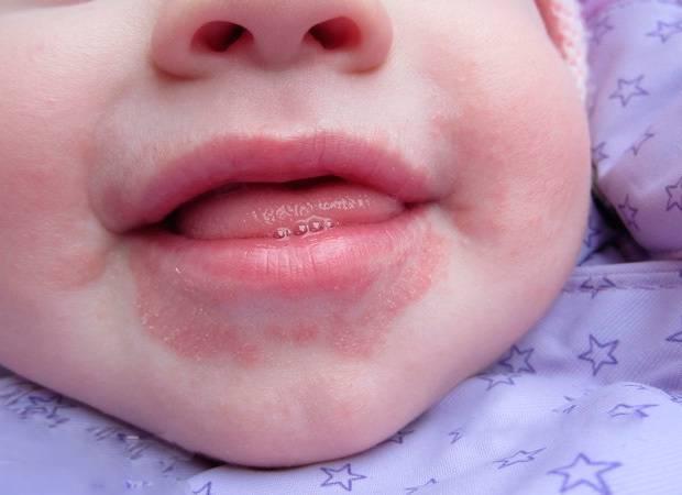 Высыпания вокруг рта у ребенка причины и лечение