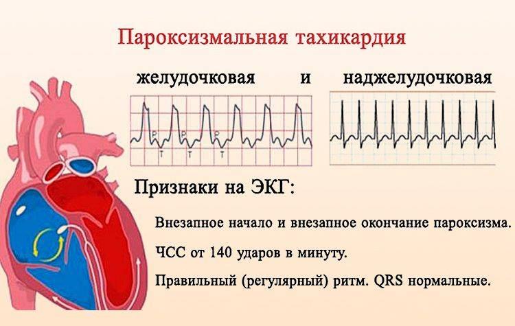 Высокий пульс перед месячными