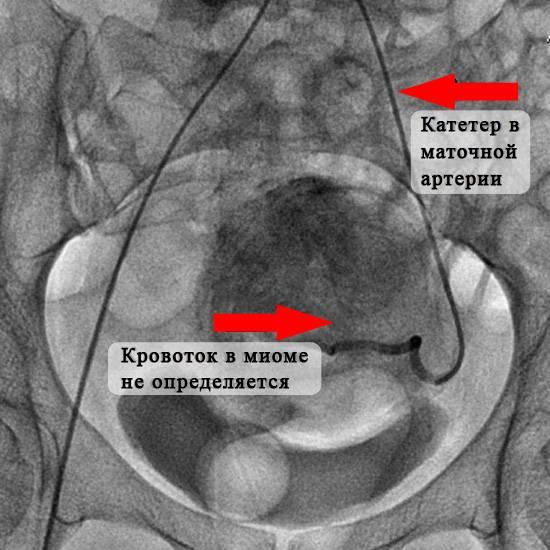 Лечение миомы матки: удаление или эмболизация маточных артерий?