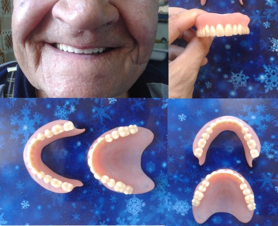 Какие съемные протезы лучше на нижнюю челюсть
