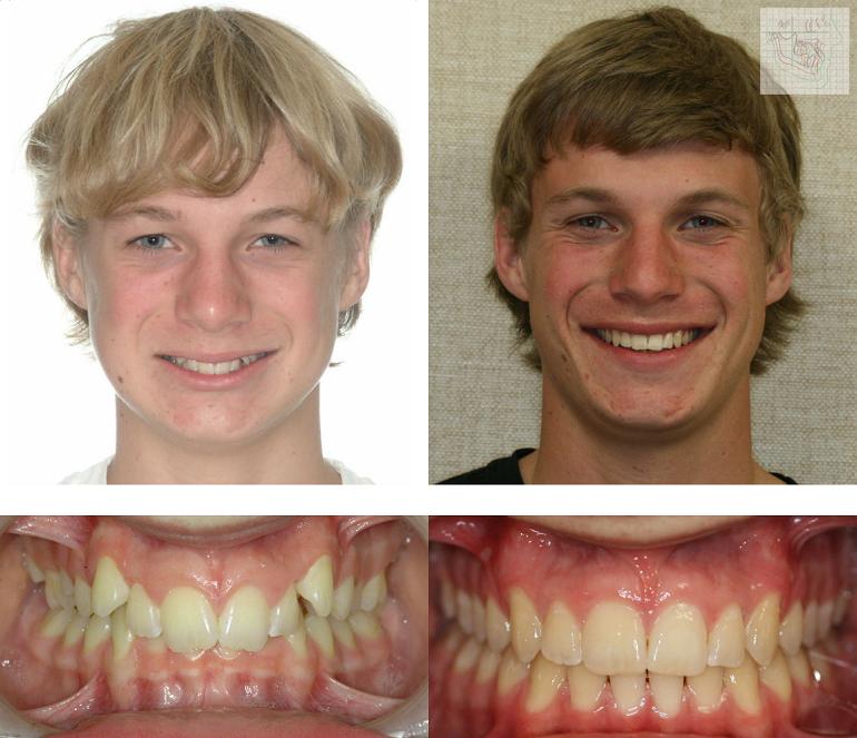 Шатаются зубы в брекетах