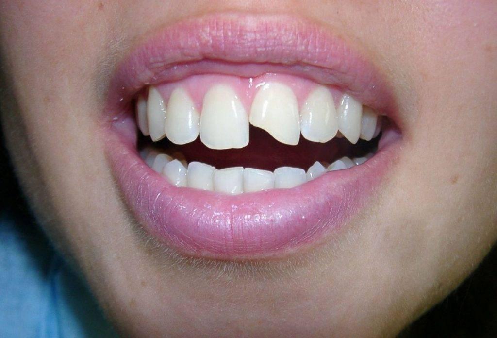 Узнаем, что делать, если шатается и болит зуб