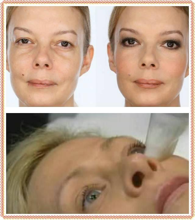 Гиалуроновые филлеры для глаз