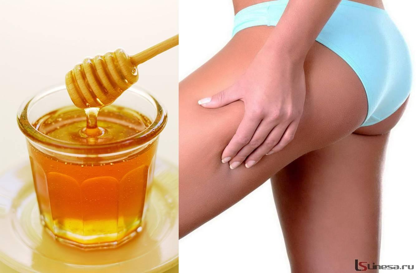 Мед от целлюлита в домашних условиях