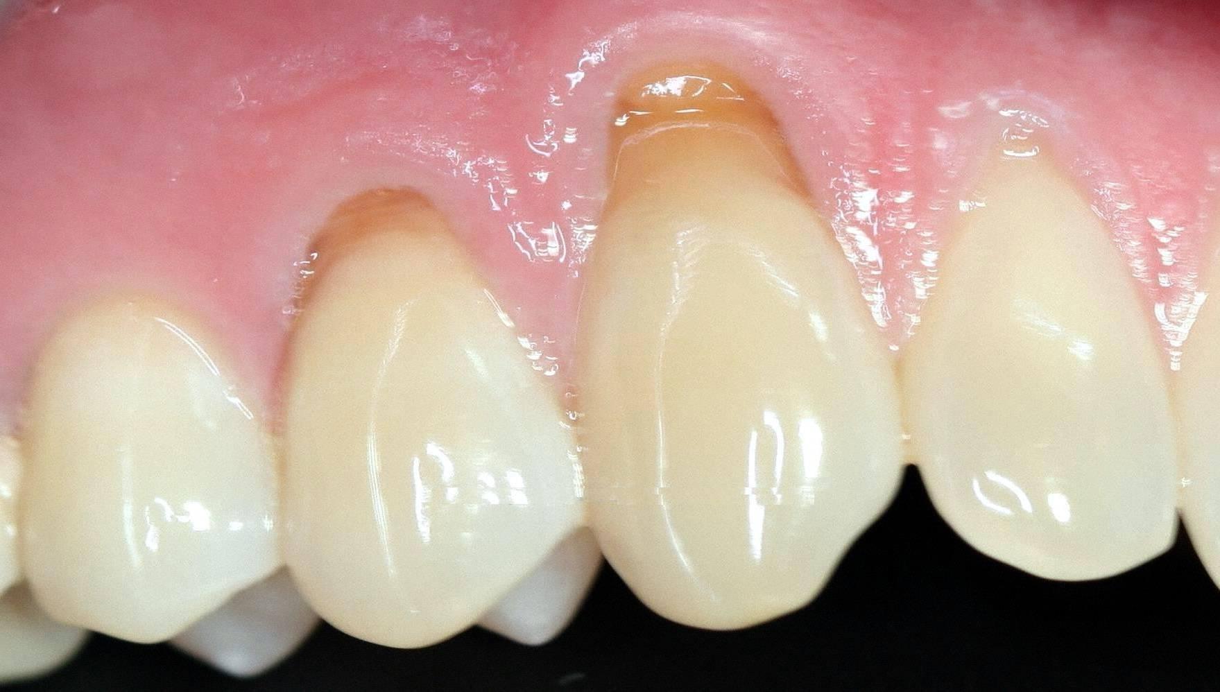 Причины возникновения и лечение клиновидного дефекта зубов