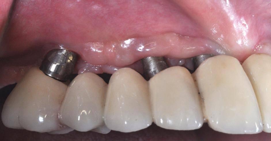 Осложнения после и во время имплантации зубов