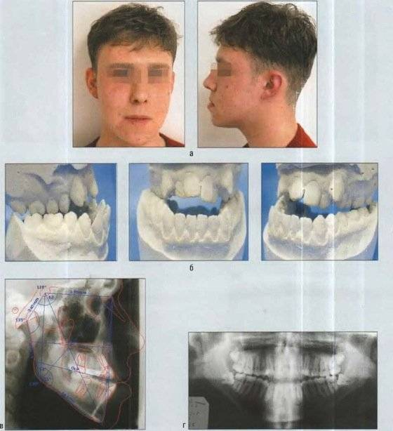 Методы лечение сужения верхней и нижней челюстей и зубного ряда