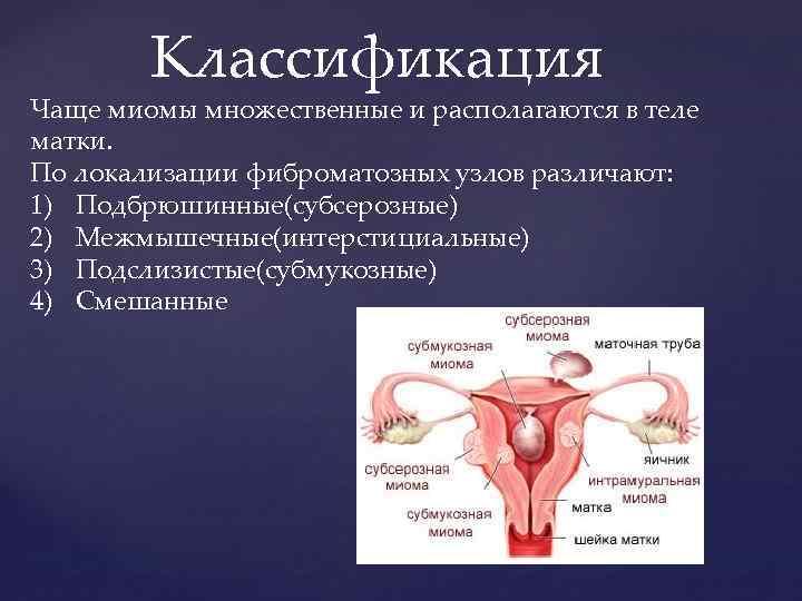 Диффузное изменение миометрия — частая гинекологическая проблема